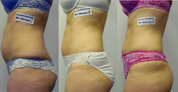 Топ самых эффективных липолитиков для похудения