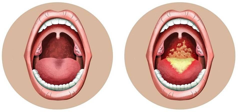 Бактериальная ангина у взрослых и детей