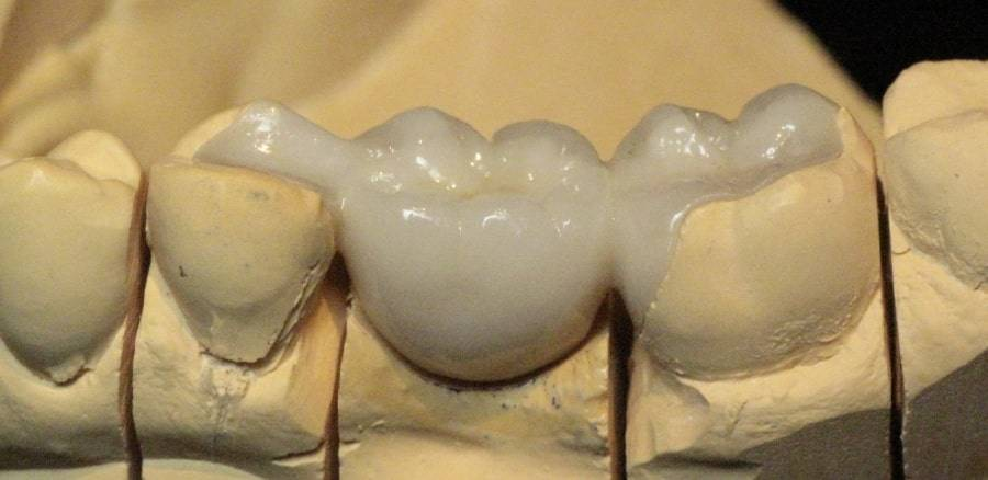 Адгезивные мостовидные протезы – восстановление зубов без обточки