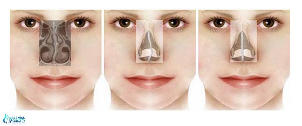 Что такое подслизистая резекция носовой перегородки?