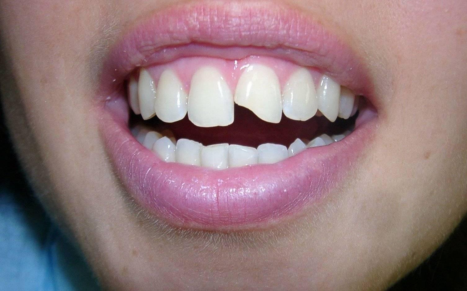 Почему разрушается зубная эмаль, что делать, если зубы начали крошиться?