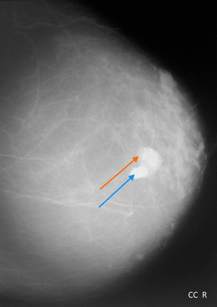 Микрокальцинаты при раке молочной желез