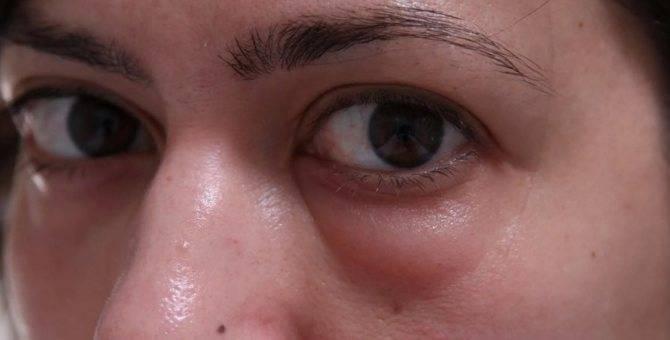 Как убрать отеки под глазами после биоревитализации?