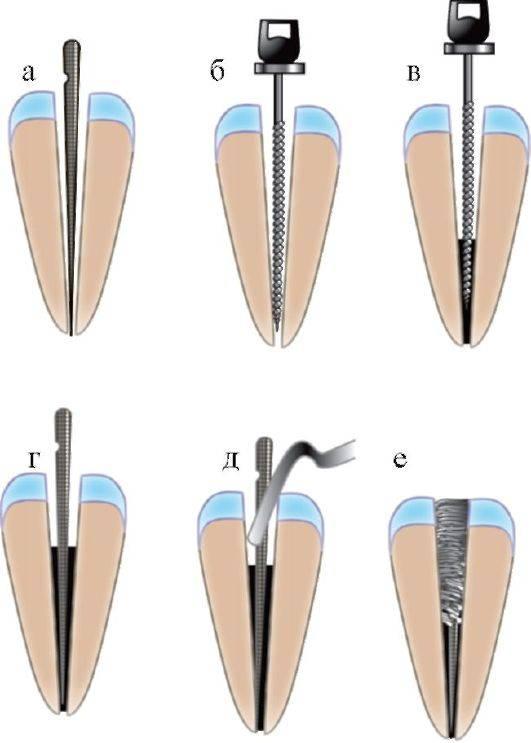 Обтурация корневых каналов в стоматологии