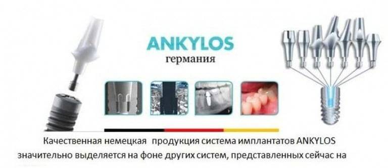 Рейтинг имплантов зубов по производителям