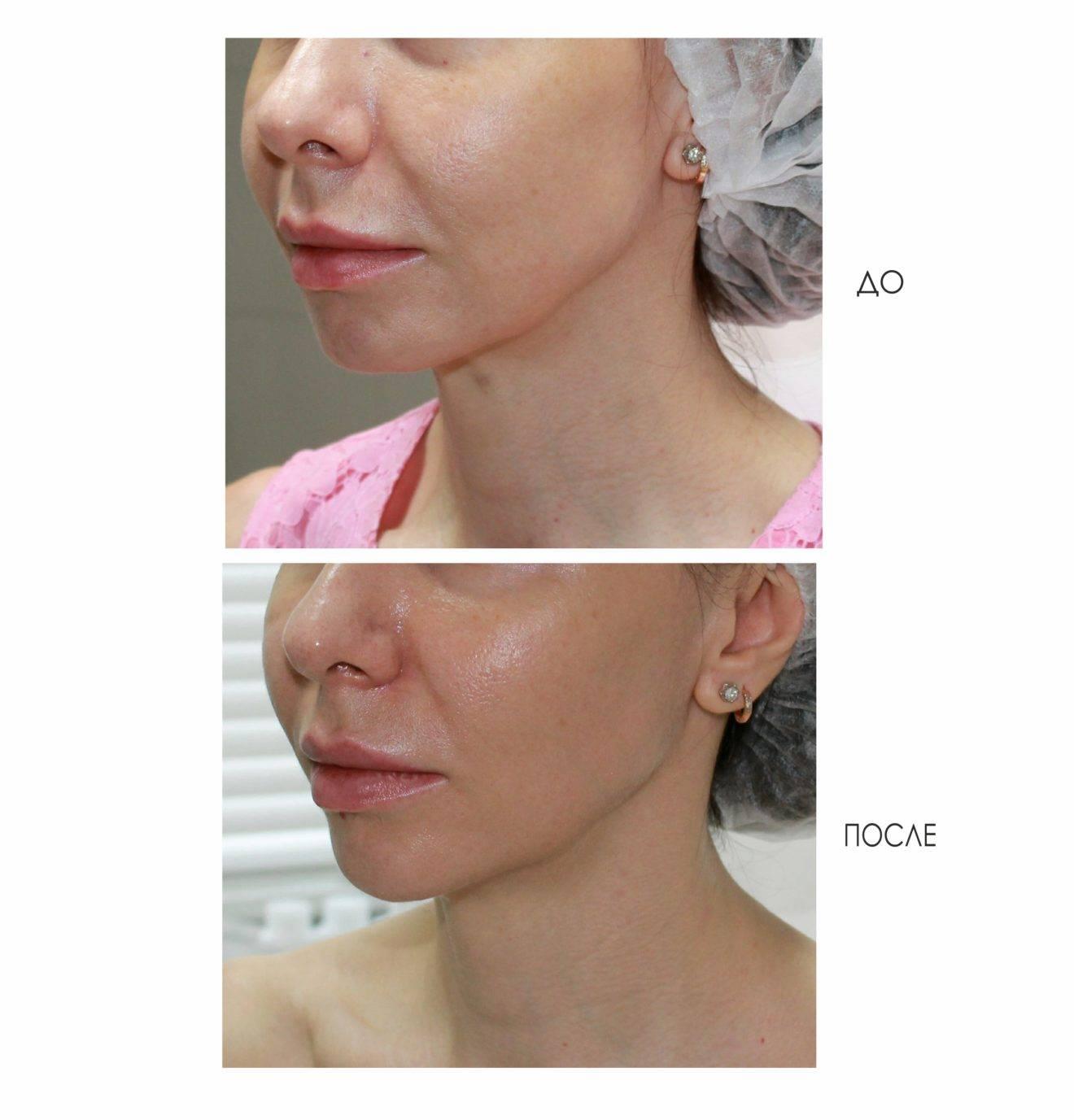 Красота – в прогрессе. сочетание радиочастотных процедур для омоложения лица и шеи