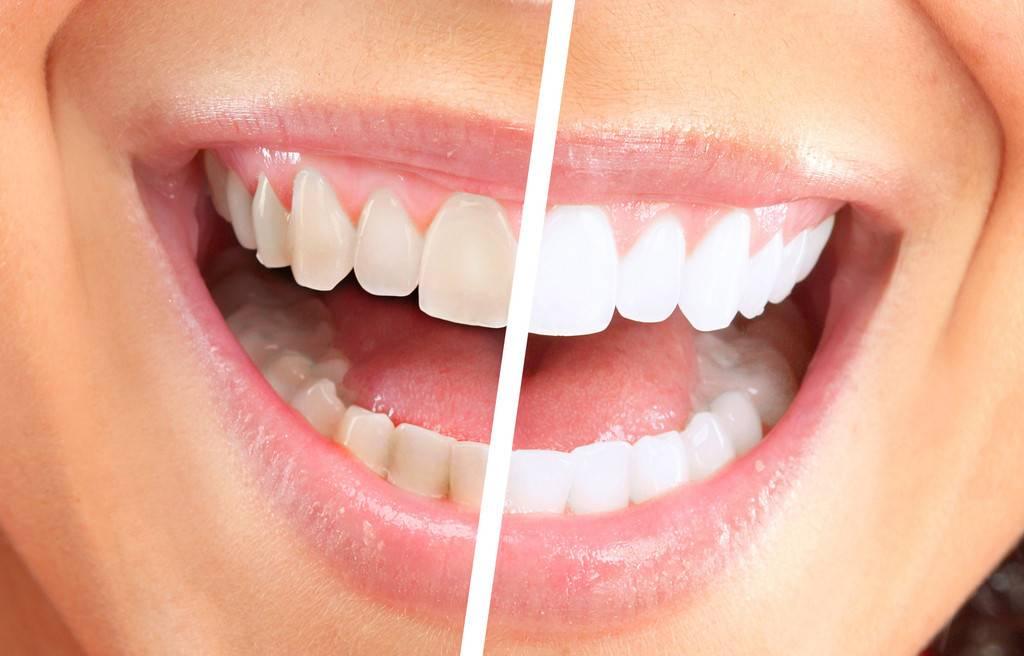 Почему после отбеливания болят зубы и как избавиться от дискомфорта?