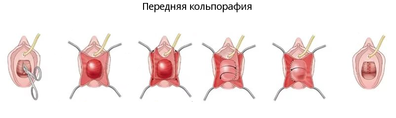 Исправить недовольство детородным органом поможет пластика полового члена