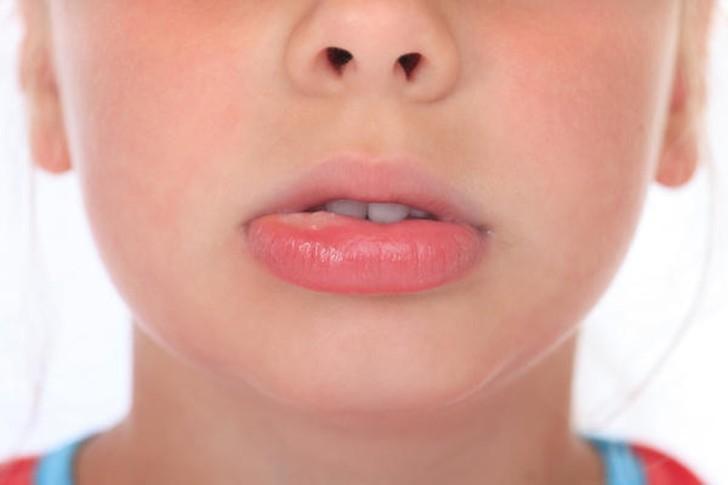Ребенок ударился губой и она распухла и белое уплотнение