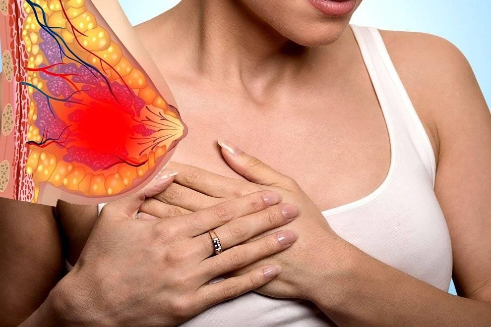 Болит левая грудь. почему болят грудные железы - причины
