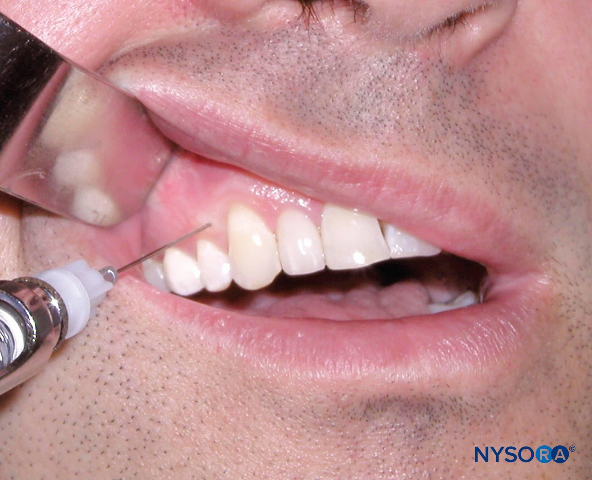 Через сколько отходит анестезия зуба после удаления и лечения