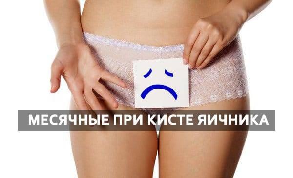 Противопоказания при кисте яичника у женщин: рекомендации