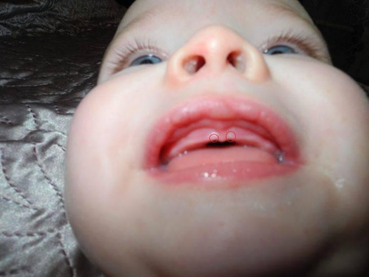 У ребенка появились зубы