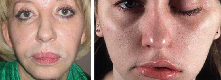 Показания к применению препарата диспорт – отзывы косметологов