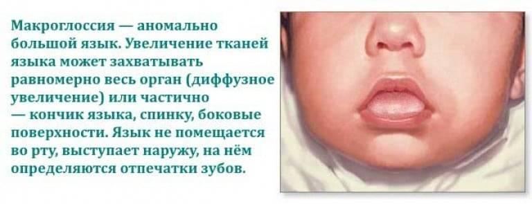 Увеличение языка (макроглоссия)