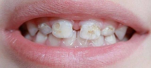 Гипоплазия эмали постоянных и молочных зубов