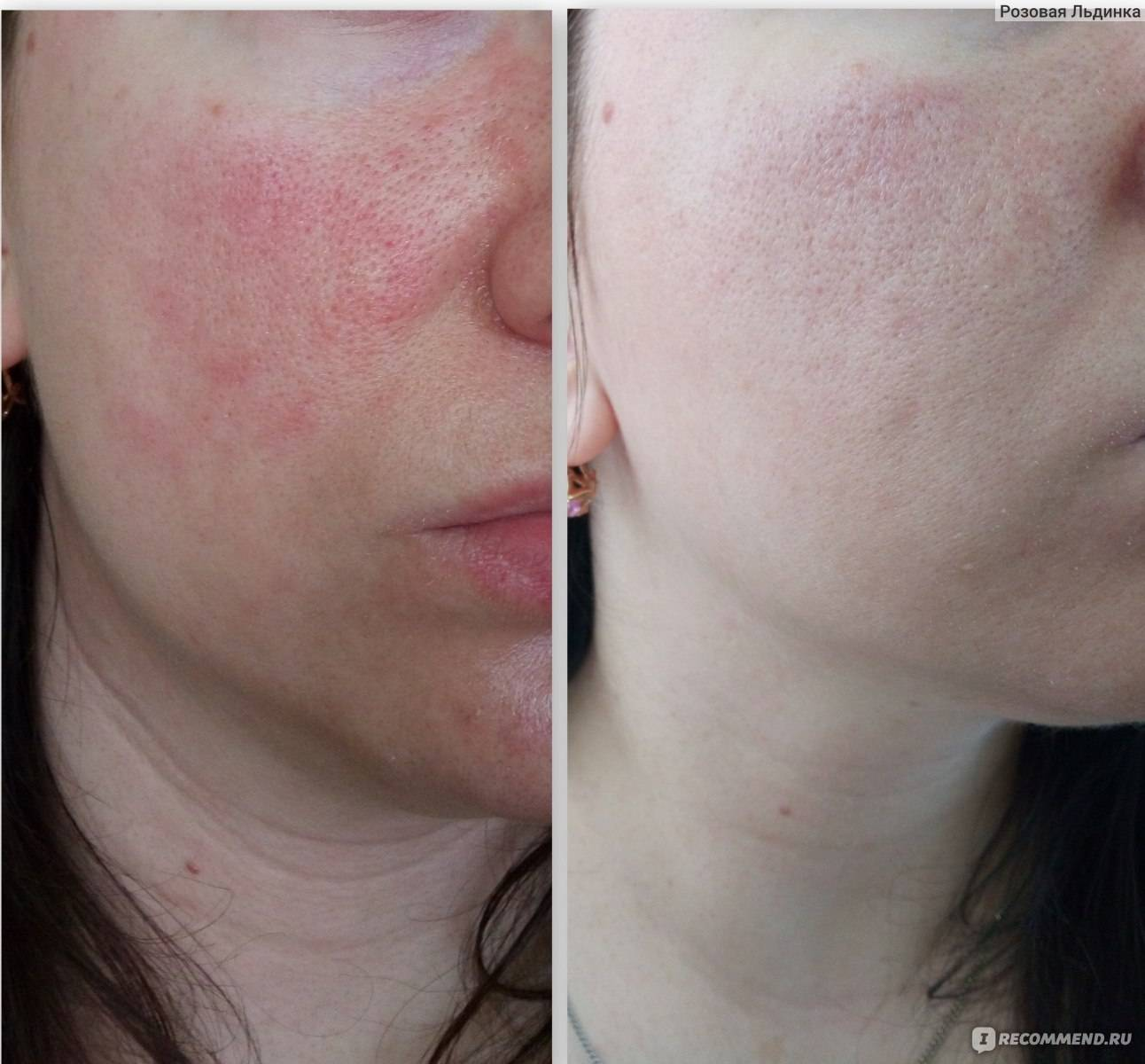Причины появления себорейного дерматита