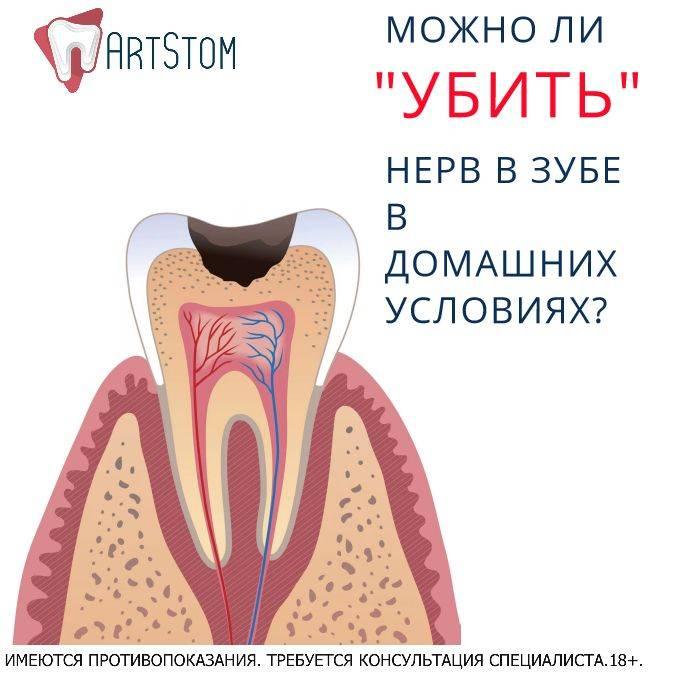 Как и чем убить зубной нерв самостоятельно
