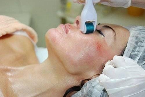 Уже через 7 дней озонотерапия сотворит чудо с вашими волосами