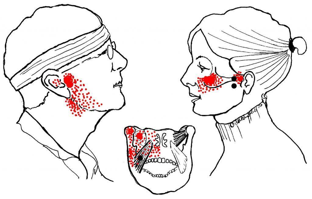Почему болит челюсть возле уха