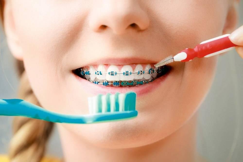 Правильный уход за зубами в брекетах: все что вы должны знать