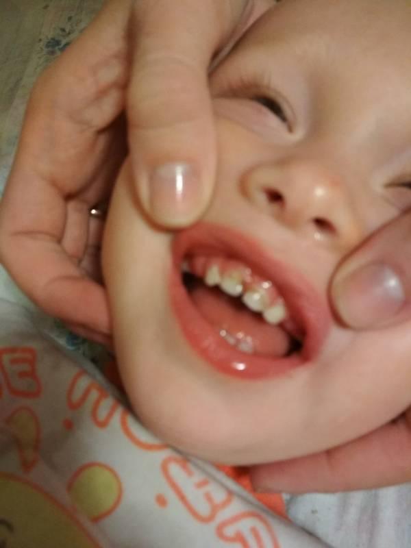 Свищ на десне у ребенка: причины, симптомы, лечение, фото