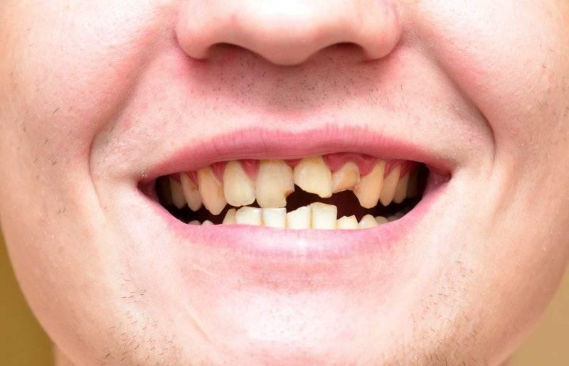 Крошатся зубы причина лечение