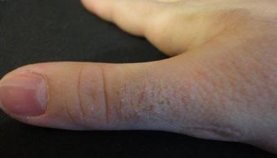 Причины, из-за которых облазит кожа на пальцах рук: симптомы и лечение в домашних условиях