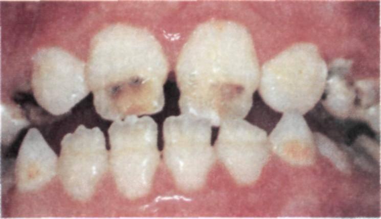 Гипоплазия эмали: причины, разновидности и симптомы, методы лечения зубов у детей и взрослых