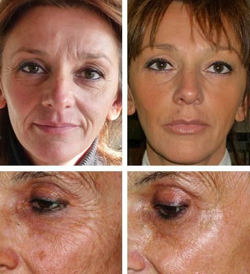 Цинковая мазь от морщин: применение в косметологии, под глазами