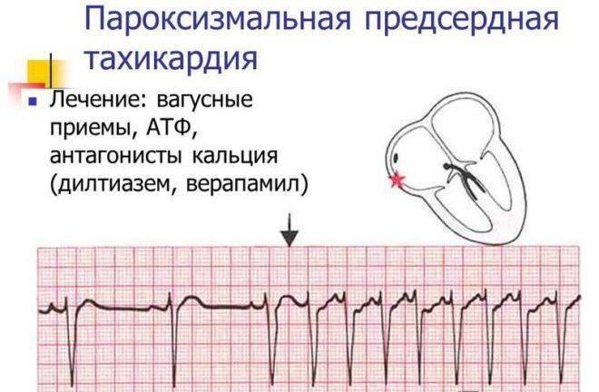 Может ли перед месячными болеть сердце