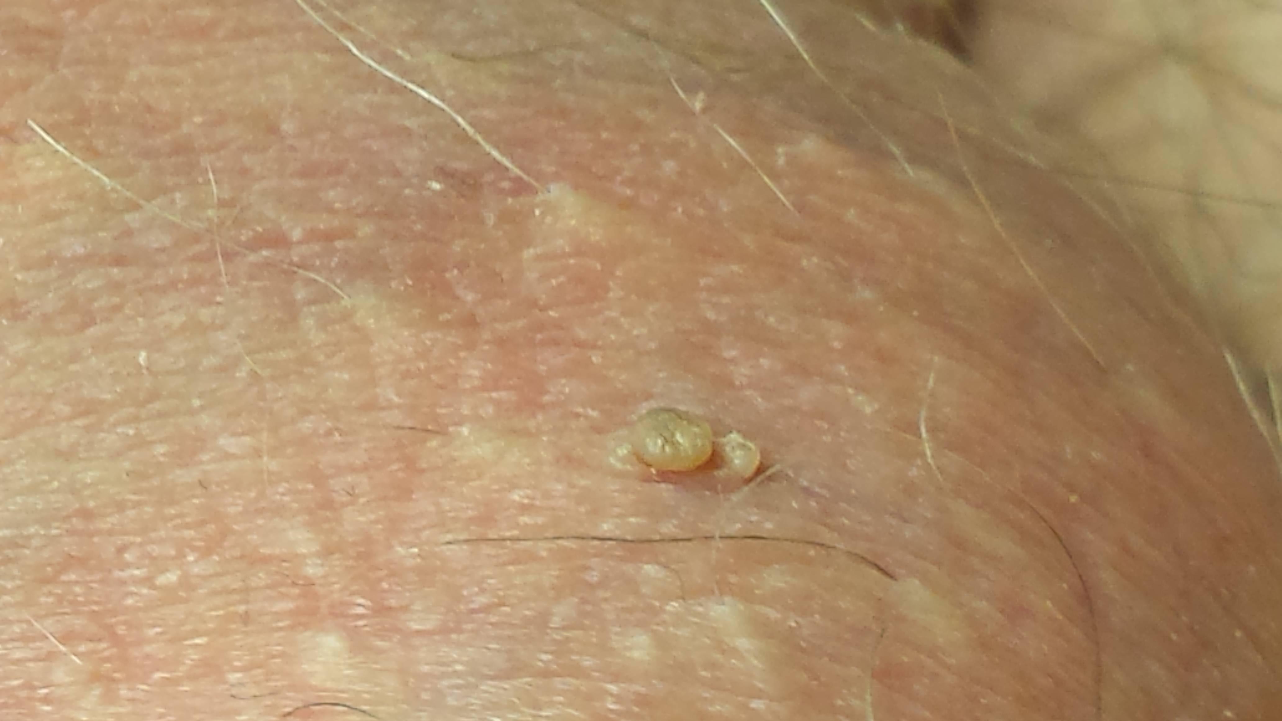 Лечение воспаления уздечки крайней плоти