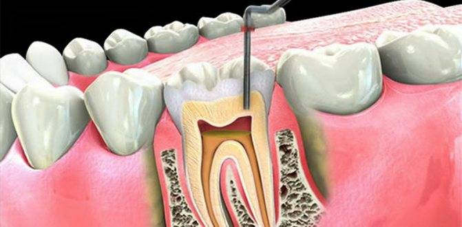 Болит мертвый зуб при надавливании причины