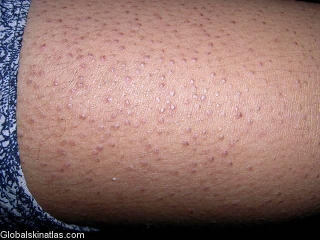 Как избавиться от гусиной кожи в домашних условиях