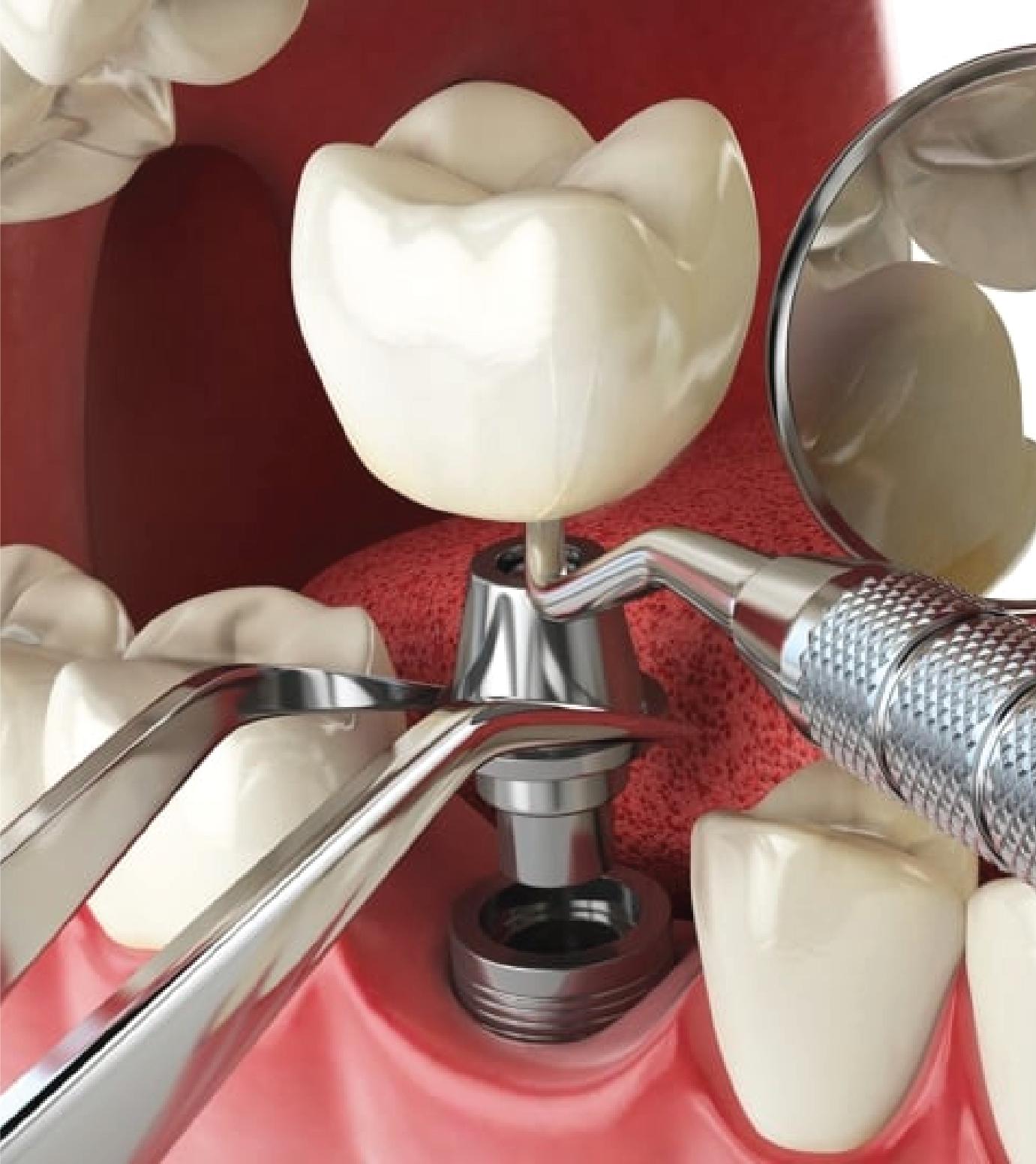 Зубные импланты — оптимальный вариант восстановить утраченные зубы раз и навсегда