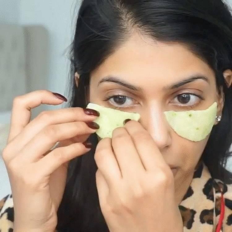 Мази, гели и кремы от мешков и отёков под глазами