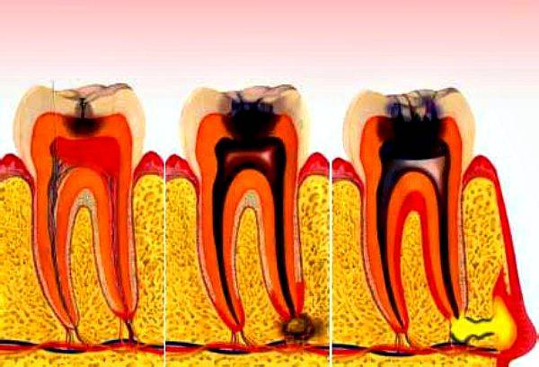 5 сценариев развития хронического пульпита