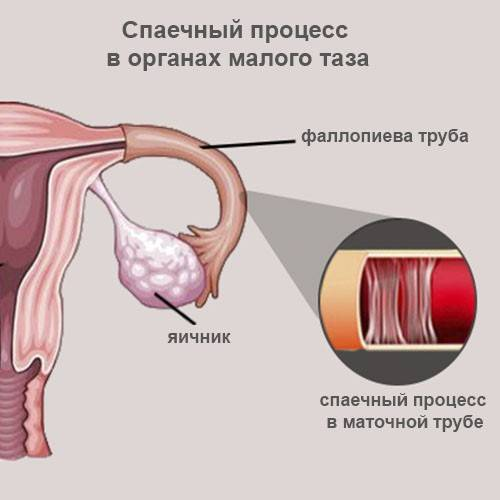 Фдт при дисплазии шейки матки: минусы и плюсы процедуры