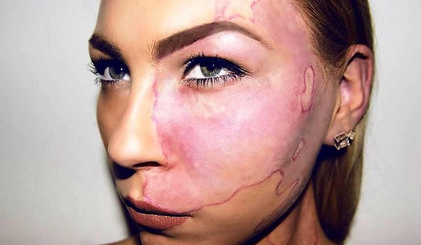 Удаление родимого пятна на лице