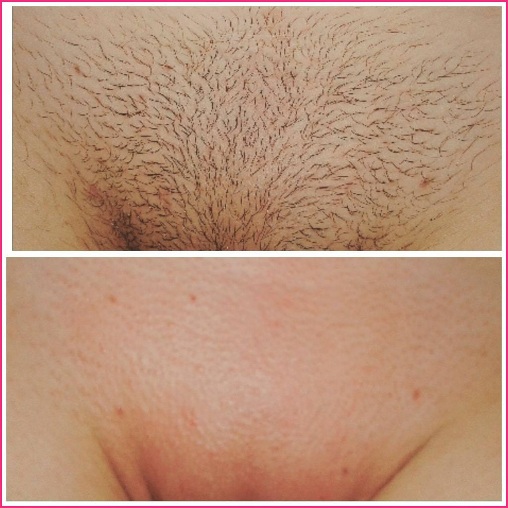 Критические дни и удаление волос: можно ли делать эпиляцию во время месячных?