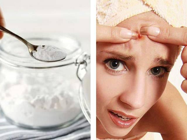 Что делать, если обветрилось лицо: крема, салонные процедуры, домашние средства