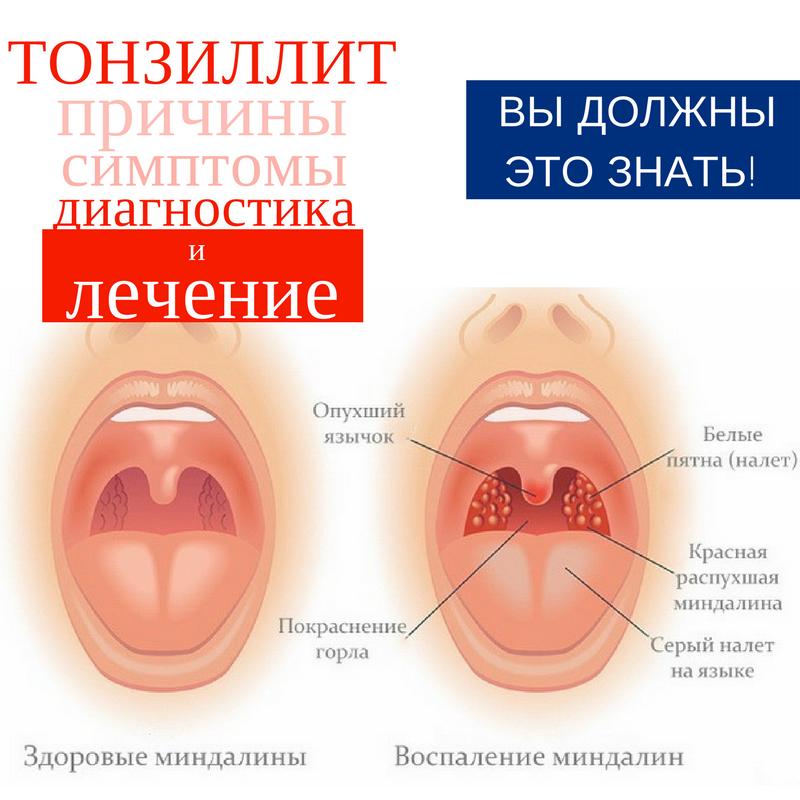 Язвы в горле — причины появления и методы лечения