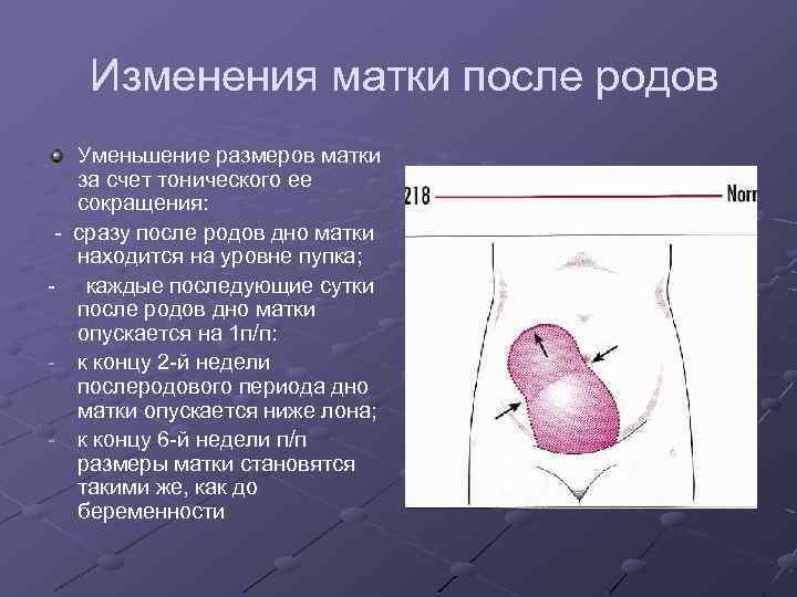 Что такое субинволюция матки после родов? значение и причины