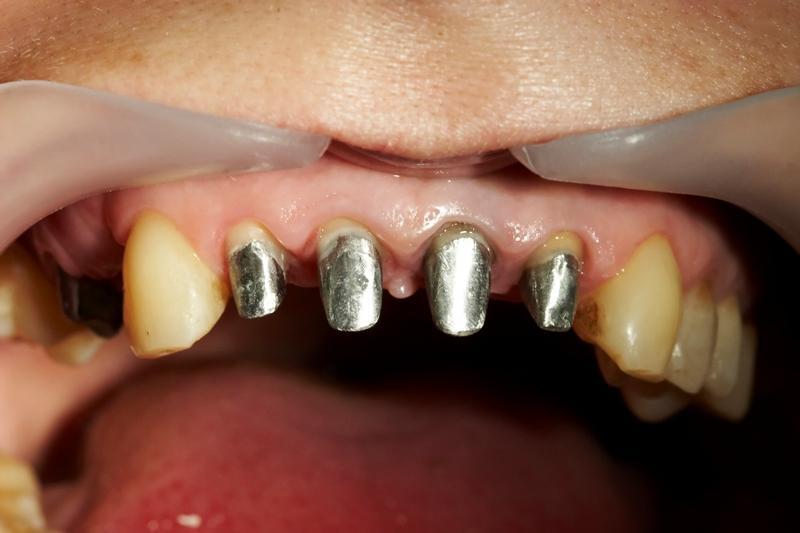 Что делать когда выпала зубная коронка