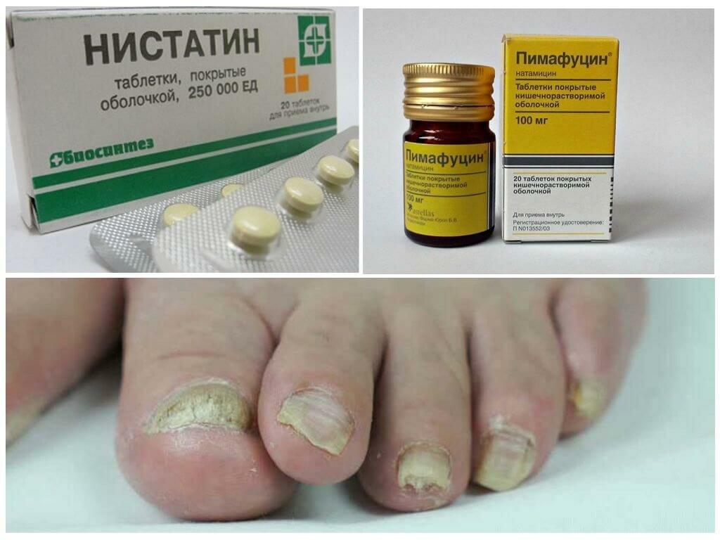 Доступные таблетки, которые справятся сгрибковыми инфекциями