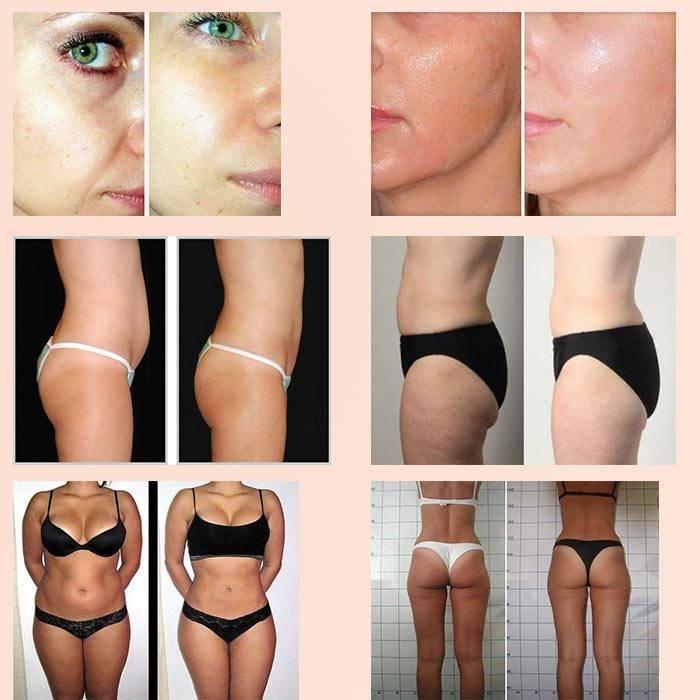 Что такое миостимуляция и насколько она эффективна для похудения