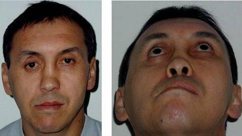 Противопоказания к репозиции костей носа при переломах