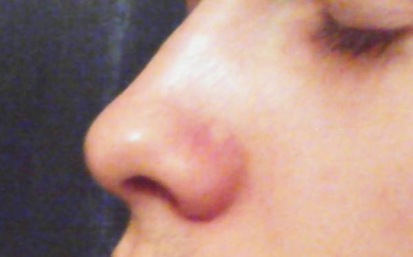 Почему появляются красные точки на лице? причины проблемы и методы лечения