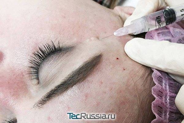 Мезотерапия вокруг глаз: на что способна популярная процедура?