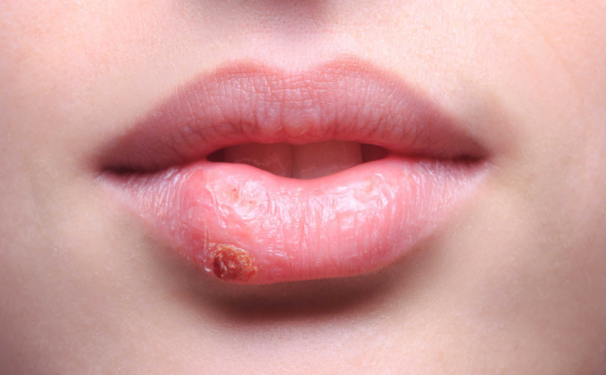 Хирургия, мази или народные средства – как лечить хейлит?